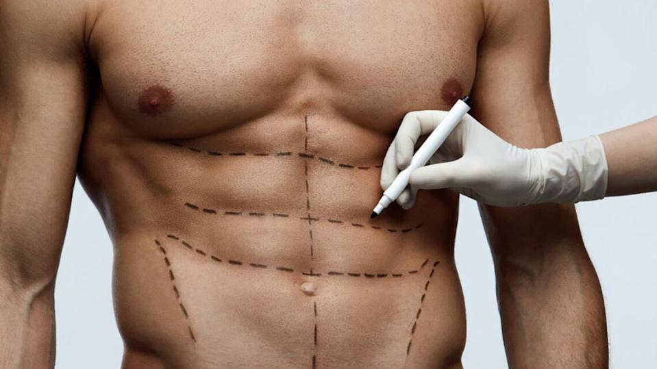 Cosmetic Surgery Procedures