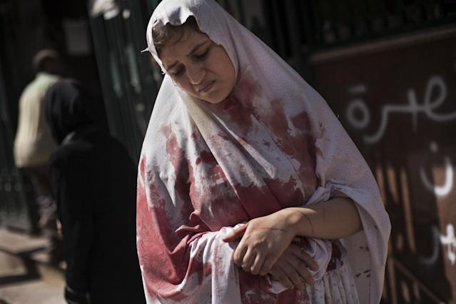 FILE - A wounded woman still in shock leaves Dar El Shifa hospital in Aleppo, Syria, Sept. 20, 2012. Dozens of Syrian civilians were killed, four children among them, in artillery shelling by Syrian government forces in the northern Syrian town. This image was one in a series of 20 by AP photographers that won the 2013 Pulitzer Prize in Breaking News Photography. (AP Photo/Manu Brabo, File)