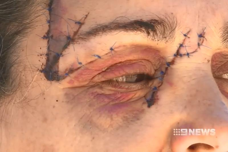 The woman, known as Dina, required 25 stitches to her face (9News)