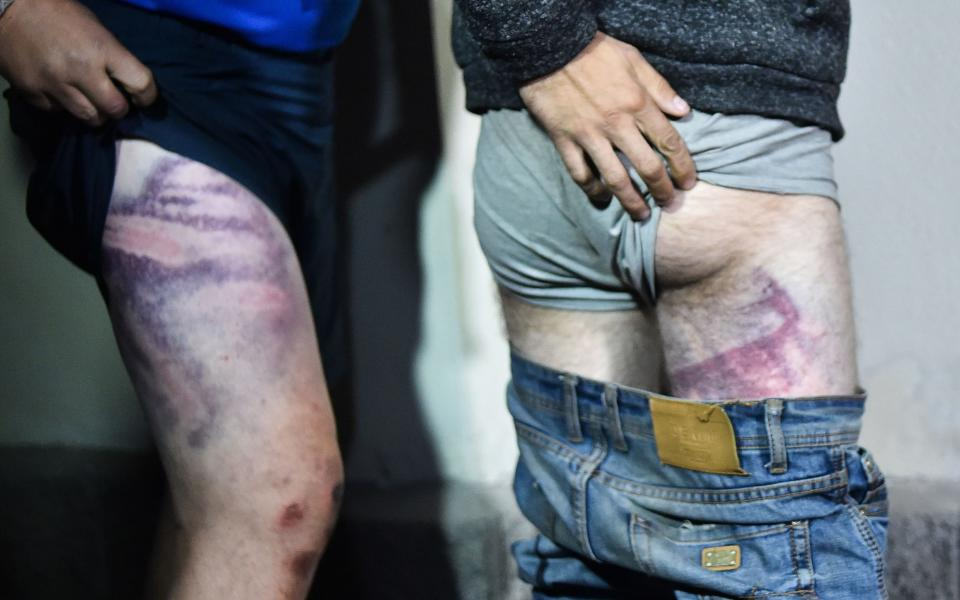 People detained during recent rallies of opposition supporters show their traces of beatings as they leave the Okrestina prison