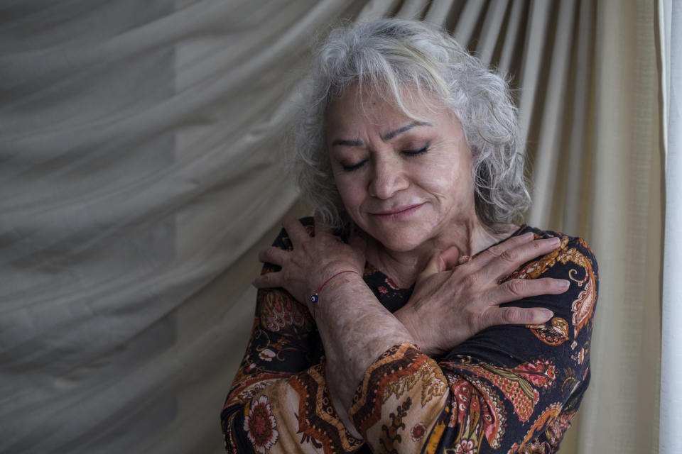Martha Avila, who survived an acid attack by her former son-in-law four years ago when she was 59, embraces herself as she poses for a portrait at her home in the state of Mexico, Mexico, June 13, 2021. Avila's attack happened on International Women's Day in 2017 while she was at work, two years after her daughter had left her partner and was in hiding from him, burning her hands, face, neck and chest. The attack came after two incidents when he had thrown acid on the family car outside their home. After 15 surgeries, she expects to undergo more to help regain mobility. (AP Photo/Ginnette Riquelme)
