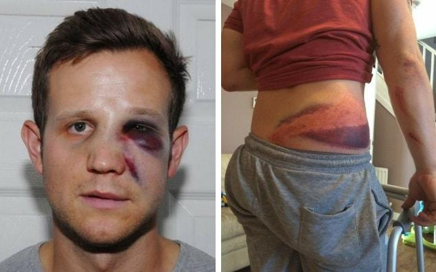 Just some of the injuries suffered by police officers - Essex Police