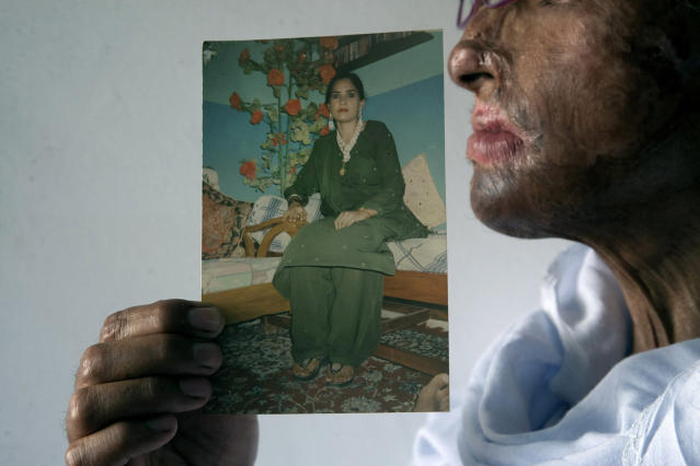 <p>Pakistani acid attack survivor, Niaz Bano, 45, holds her picture taken before the attack in Karachi, Pakistan, March 6, 2015. Bano was attacked after a dispute with her second husband, who according to Bano had bad intentions for her two daughters from her first husband. Bano works as a house maid to earn her living. Pakistan is celebrating International Woman's Day. (AP Photo/Shakil Adil) </p>