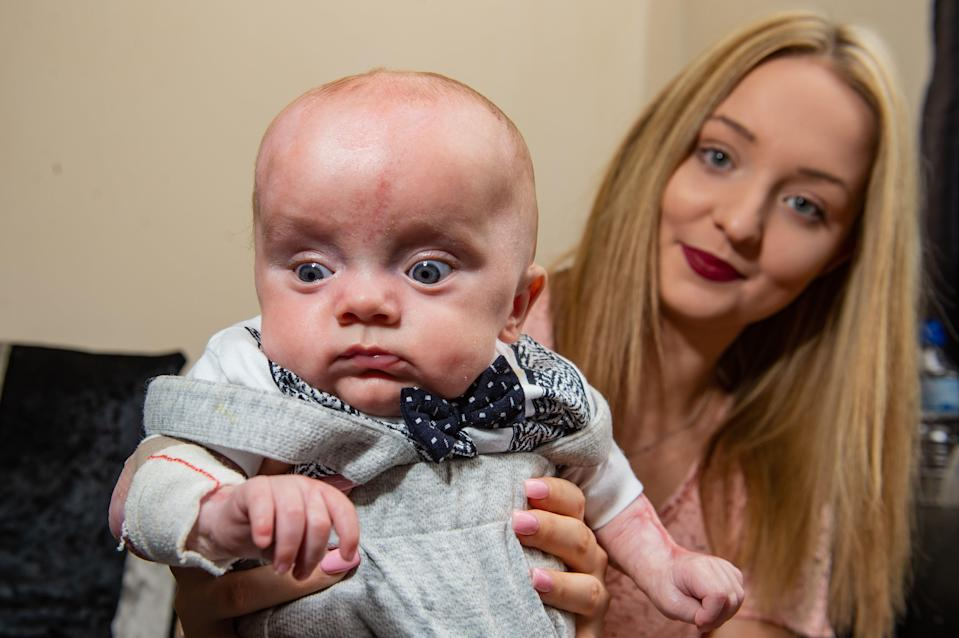 Little Kaiden Jake Shattock, is now six months old, but was born without the top layer of skin on his entire body [Photo: SWNS]