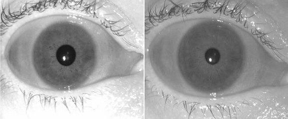 Future Eye Scanners Must Combat Aging Eyes