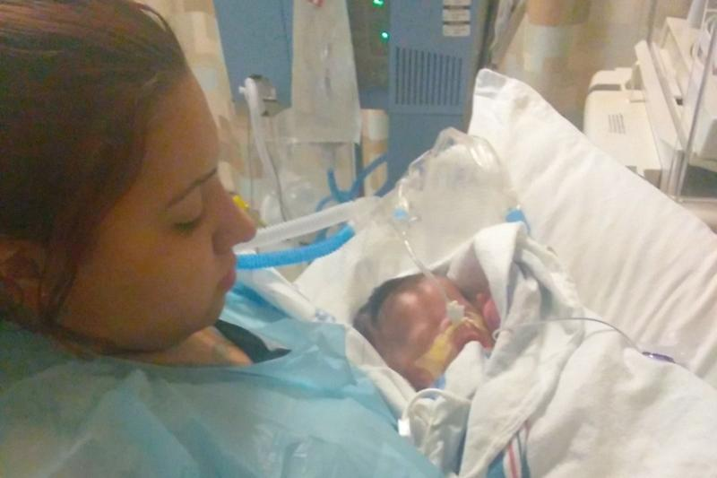 Baby born without skin puzzles doctors, but mom says 'we have faith, that's all that matters'