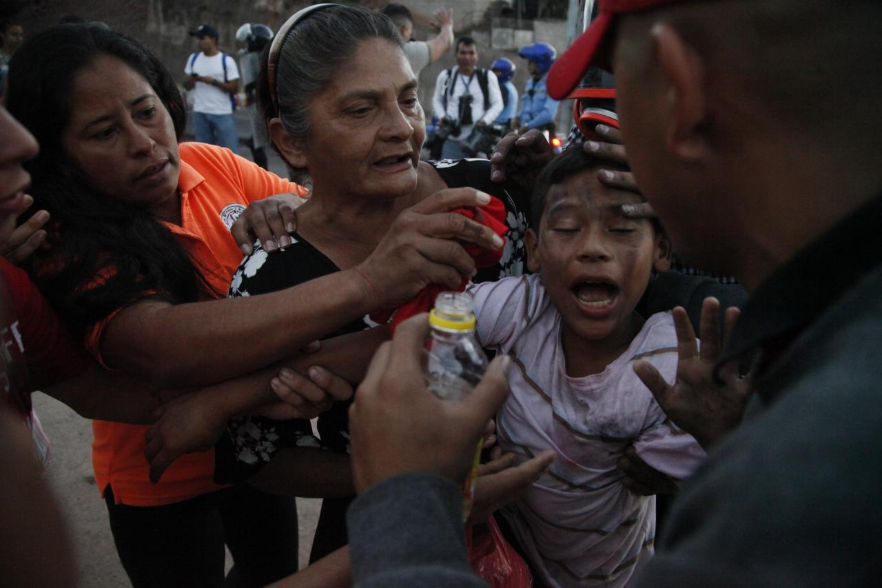 <p>A youth is assisted by bystanders as he reacts to tear gas fired by police during a protest by supporters of presidential candidate Salvador Nasralla in Tegucigalpa, Honduras, Friday, Dec. 1, 2017. (Photo: Fernando Antonio/AP) </p>