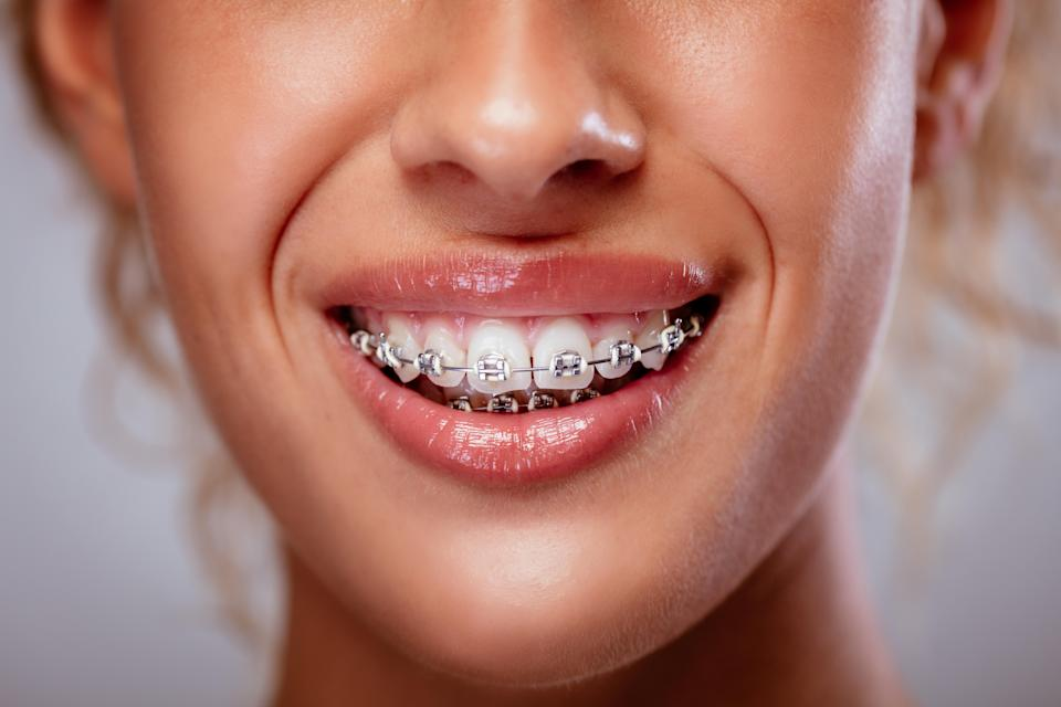 Braces can help with severe teeth crowding (Alamy/PA)