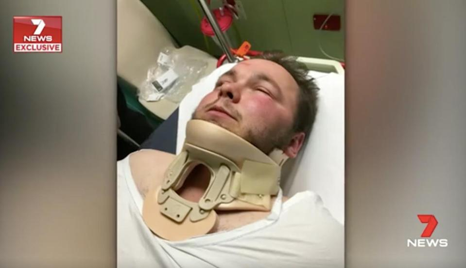 Mr Allsop said he was dragged from the car before being kicked and punched. Source: 7 News