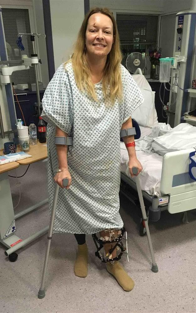 Mrs Cochran, 46, in hospital after suffering a broken leg and rib and a cut to her head during the attack