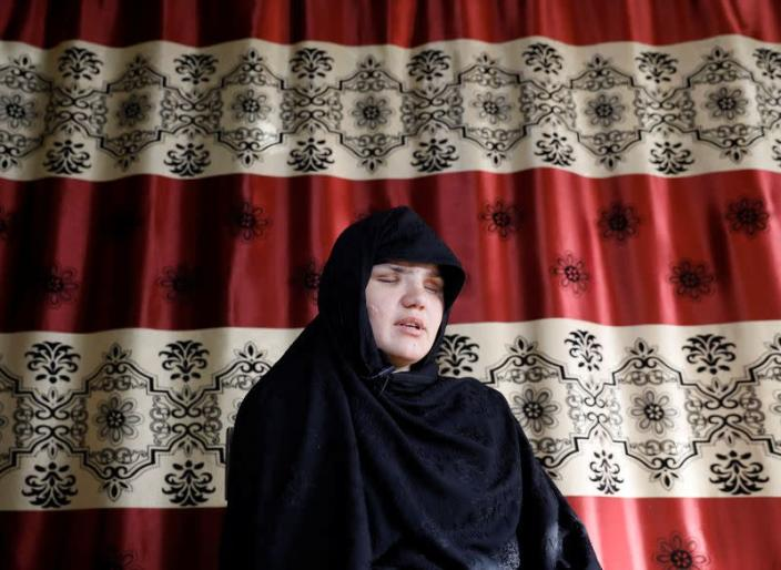 Afghan police woman who was blinded after gunmen attack interviewed in Kabul