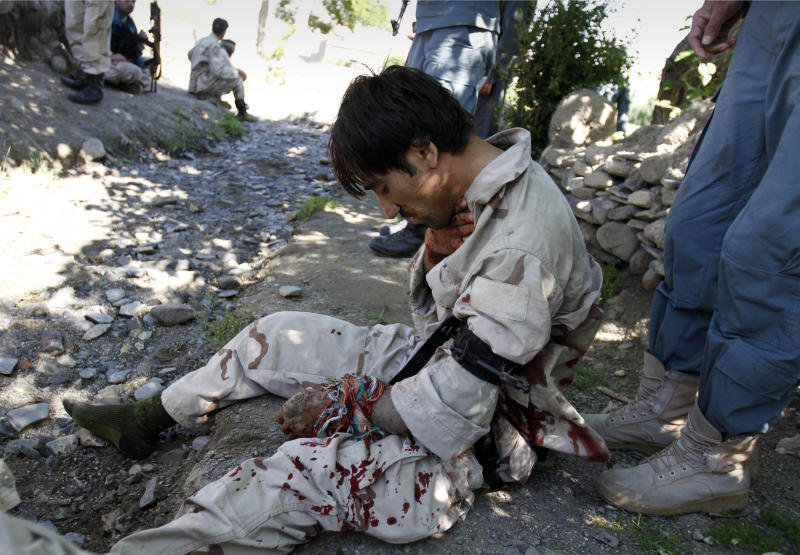A wounded member of the Afghan police reaction force waits for treatment in Alingar, Laghman province, east of Kabul, Afghanistan, Monday, April 30, 2012. A bomb exploded next to the opium poppy fields during a poppy eradication campaign in Alingar, wounding two Afghan police reaction forces, police officials said. Afghanistan supplies most of the world's opium. (AP Photo/Rahmat Gul)