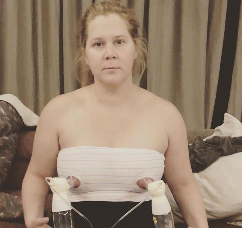 Amy Schumer | Amy Schumer/Instagram
