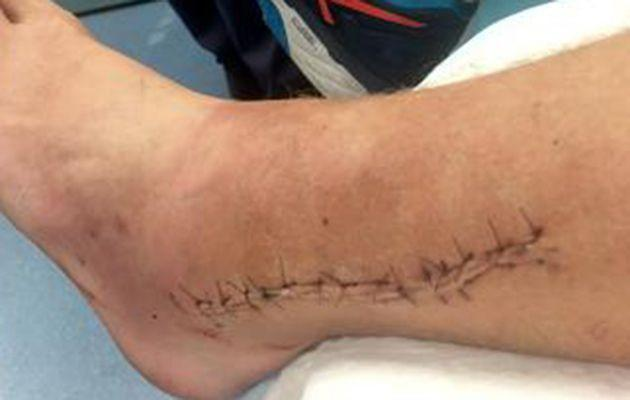 Browne's ankle was horribly mangled before surgery. Image: Twitter