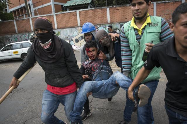 <p>A supporter of Libre Alliance presidential candidate Salvador Nasralla is assisted by fellow protesters after getting injured during clashes with security forces guarding the institute where election ballots are stored in Tegucigalpa, Honduras, Thursday, Nov. 30, 2017. (Photo: Rodrigo Abd/AP) </p>