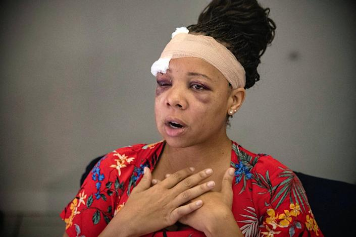 On June 2, 2020, LaToya Ratlieff talks about being shot in the face with a foam projectile at a protest in Fort Lauderdale. Ratlieff was choking from tear gas and trying to leave the area when she was shot that Sunday.