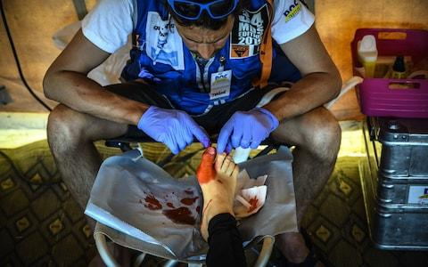 Medical teams are on-hand, many dealing with footcare issues - Credit: getty