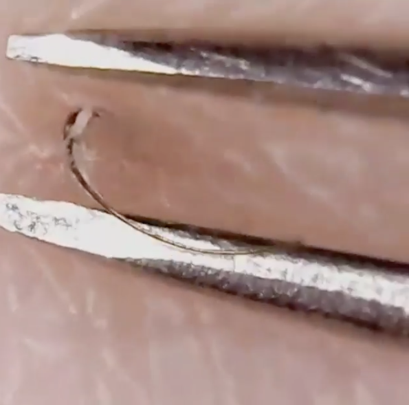 If you love the satisfaction of removing an ingrown hair, this is the Instagram account for you. Photo: Instagram