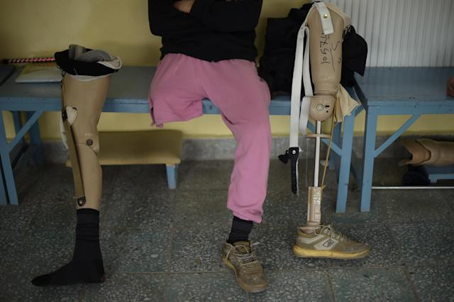 <p>An Afghan amputee man waits at one of the International Committee of the Red Cross (ICRC) hospitals for war victims and the disabled in Kabul on April 3, 2016.<br> The ICRC orthopaedic project was set up in 1988 in Kabul. (Photo: Shah Marai/AFP/Getty Images) </p>