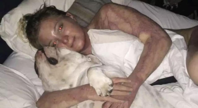 Hana Engel with her dog, Gwen, in the early stages of her recovery from the accident. (Handout/Postmedia via the Ottawa Citizen)