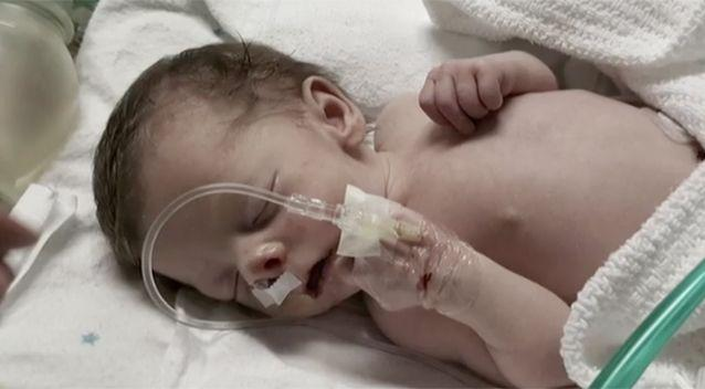 Sofia was suffering a life-threatening birth defect. Source: Today Tonight