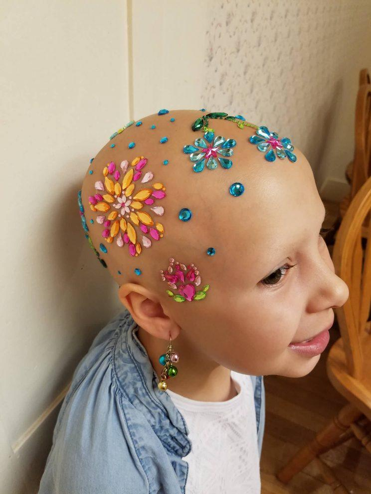 Gianessa Wride, 7, has alopecia, an autoimmune disease that causes hair loss.