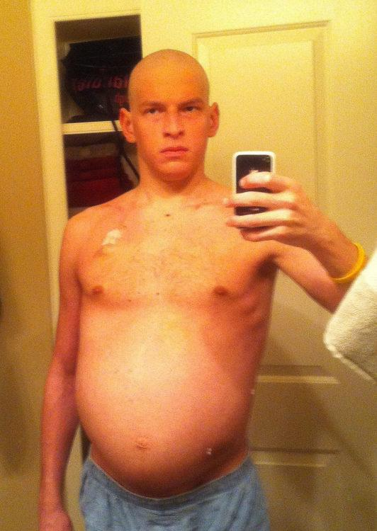 David, bald with a distended stomach.
