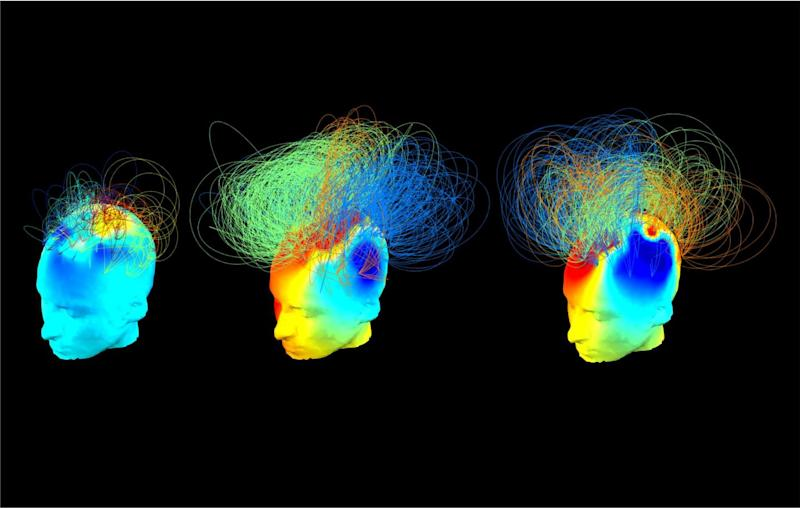 Hidden Consciousness in Vegetative Patients Could Be Detected by Simple Bedside Test