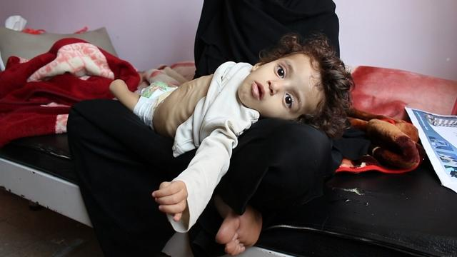 The head of the World Food Programme says 125,000 children could die in Yemen as food is blockaded from the country. Scott Pelley shows a rare look at the situation on this week's 60 Minutes.