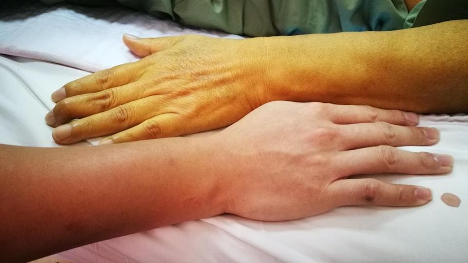 Jaundice with pale yellow discoloration compared to normal skin color.