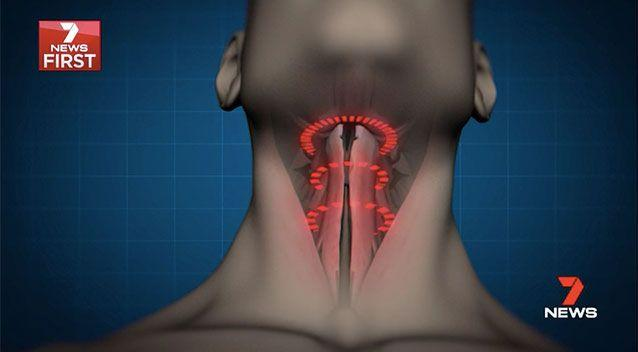 Nearly 800,000 Australians suffer from sleep apnea, where the airway closes repeatedly during sleep. Picture: 7 News