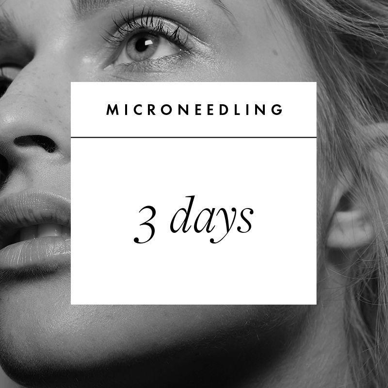 """<p><strong>What It Is: </strong><a href=""""https://www.elle.com/beauty/makeup-skin-care/a12773502/microneedling-faq-facts-cost/"""" rel=""""nofollow noopener"""" target=""""_blank"""" data-ylk=""""slk:a skin-rejuvenating procedure"""" class=""""link rapid-noclick-resp"""">a skin-rejuvenating procedure</a> that involves puncturing the skin with microneedles ranging in length from .5-2mm. It creates controlled injuries to the skin, which puts collagen production into overdrive, resulting in less visible scarring and increased plumpness and radiance. </p><p><strong>Book Your Date:</strong> It depends on your skin. Many people walk out of a microneedling procedure with an out-of-this world glow and wake up the next day looking great, while others have redness that lasts up to five days. If it's your first time, the pros say to give yourself three days of downtime to be safe. The more you get microneedling (every four to six weeks is recommended), the less reactive your skin will be.</p>"""