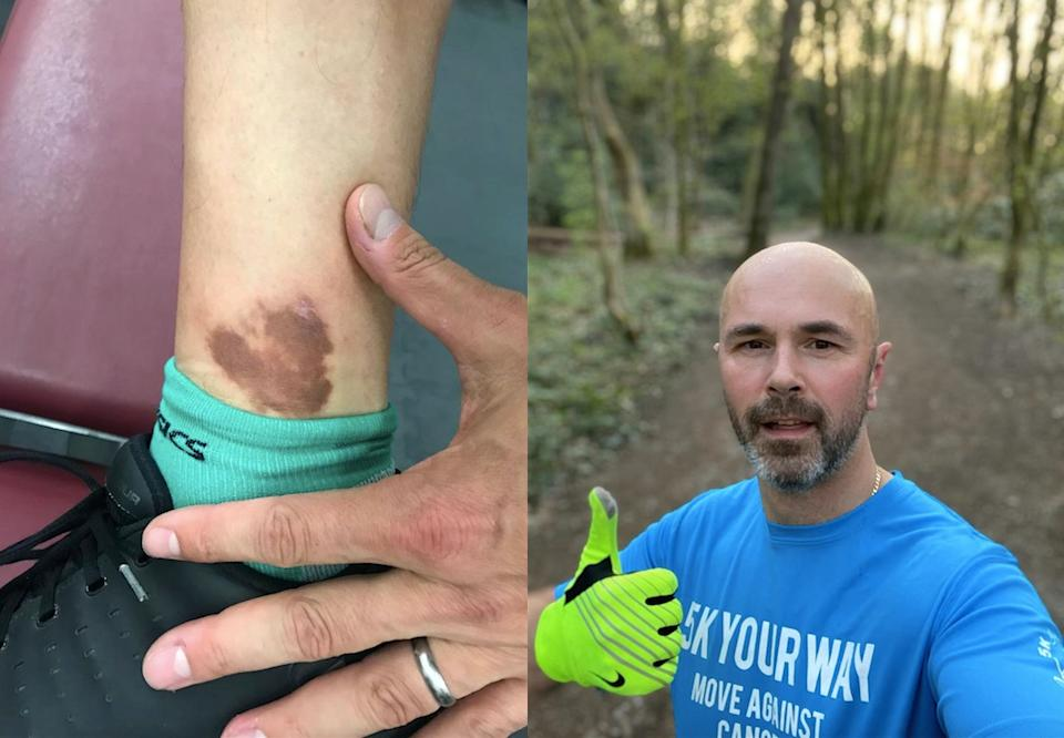 The 'bruise' on John Haywood's ankle turned out to be cancer.  (John Haywood / SWNS)