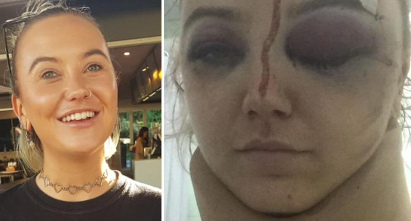 Emma Bell suffered serious head injuries in the attack. Source: GoFundMe
