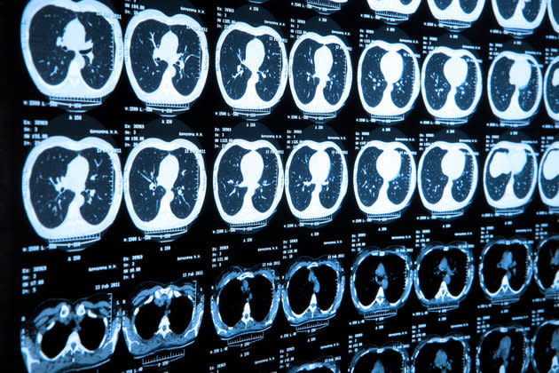 Scientists have successfully built artificial intelligence (AI) that can diagnose patients with heart disease and lung cancer much earlier than human doctors.