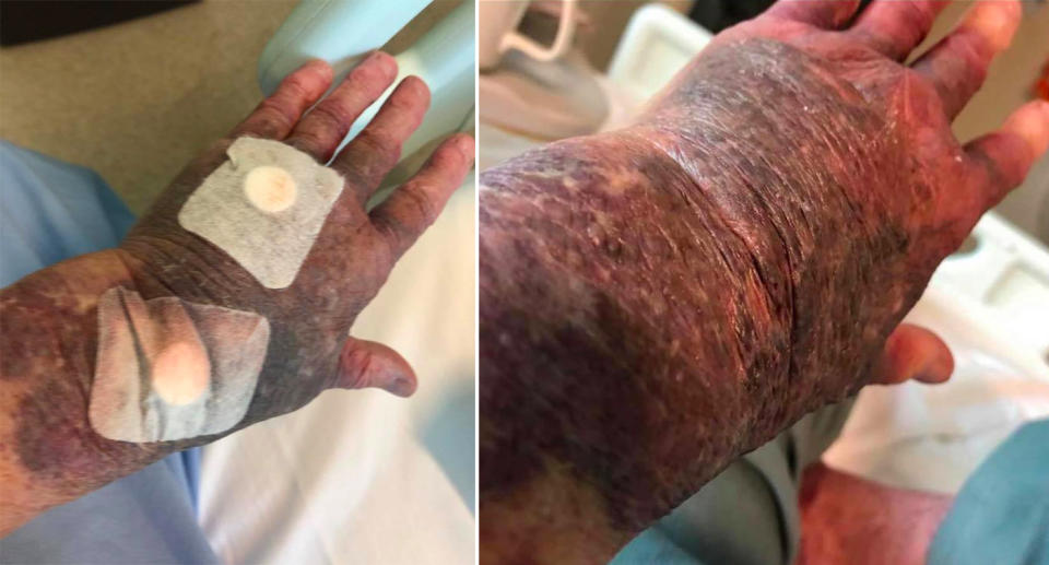 Maureen DeBoick's arms are swollen and bruised after receiving the AstraZeneca vaccine.