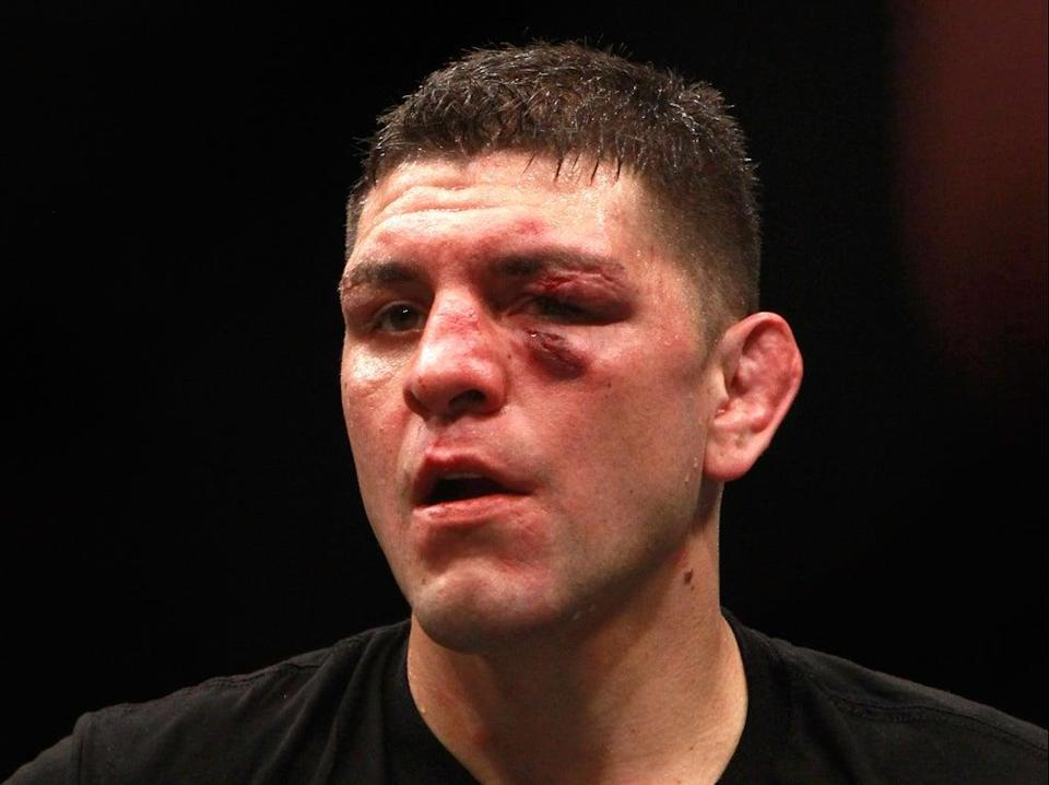 Nick Diaz after his last UFC bout, in 2015 (Getty Images)