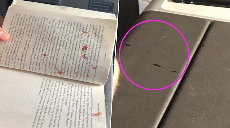 American Airlines Passenger's Huge Blister Pops in Miami-Bound Flight, Blood Splatters on Fellow Passengers and Flight Wall! (View Pics)