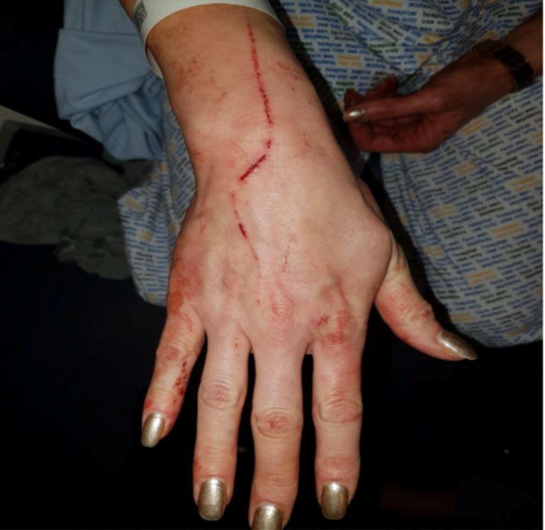 Anna suffered injuries to her hands, arms and face. (SWNS)