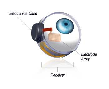FDA Approves First Retinal Implant