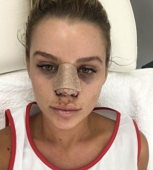 Skye had rhinoplasty on her nose to fix her flared nostrils. Photo: Supplied