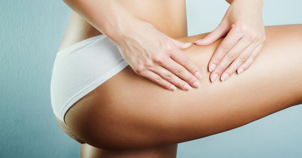 Slimming creams can help reduce the appearance of cellulite. (Image via Getty Images)