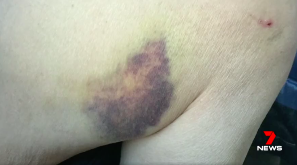 The 82-year-old's daughter set up the cameras when she discovered her father's body covered in bruises. Source: 7News