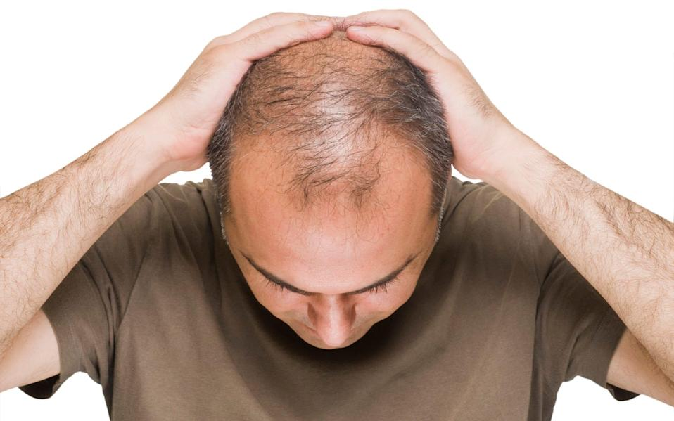 Some scientists have suggested that the male hormones that cause baldness also play a role in coronavirus infections - E+