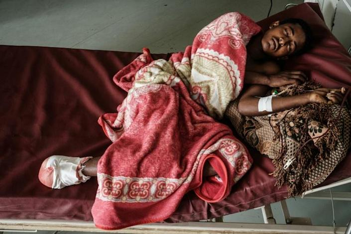 Mehari Haletom, 18, was wounded by an air strike on a market on the Tigrayan town of Togoga on June 22. She underwent an amputation at the Ayder hospital in Mekele two days later