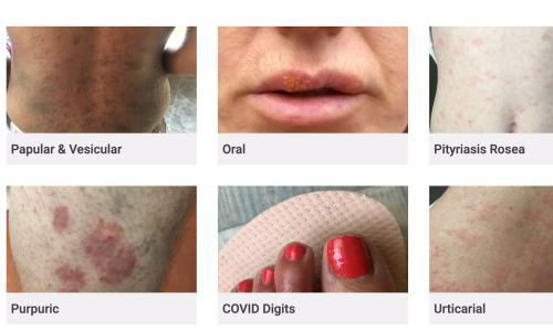 Covid-19 skin rash website criticised for lack of BAME examples