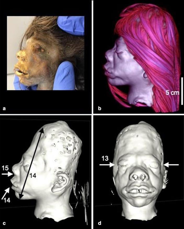 After several scientific tests, researchers established that the object was a human head, probably from a slain enemy. (Byron et al. / Heritage Science)