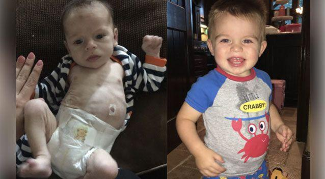 A woman has posted incredible before and after photos of a drug-addicted baby on social media after her family adopted him. Photo: Twitter