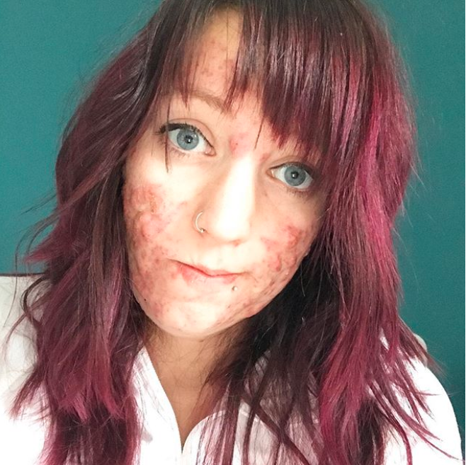 Klassen developed severe cystic acne when she was 25-years-old and pregnant. However, she developed sepsis and tragically lost the baby. (Photo: Instagram/stephmkt1d)