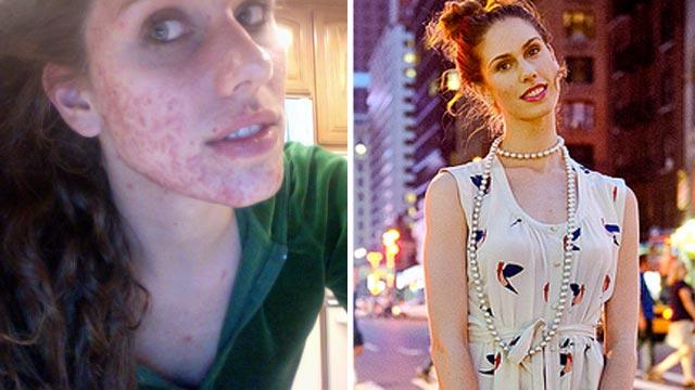 Acne-Plagued Teen Lands Spot on Fashion Week Runway